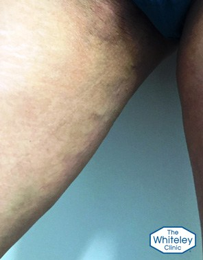 Typical paravulvar varicose veins due to pelvic varicose veins causing varicose veins in the legs right side