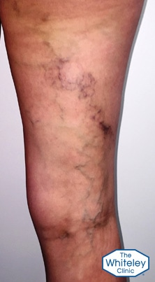 Typical pelvic vein varicose veins on rear of thigh with old phlebitis brown staining right