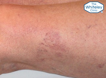 Typical thread veins on thigh - Telangectasia spider veins - CEAP-C1