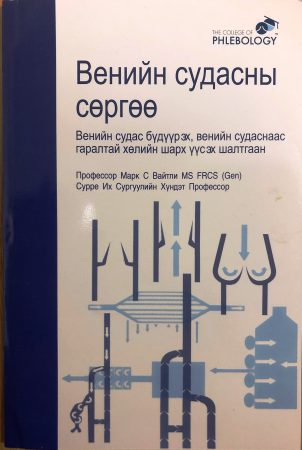 Understanding veins reflux - The cause of varicose veins and venous leg ulcers now standard vein text book in Mongolia