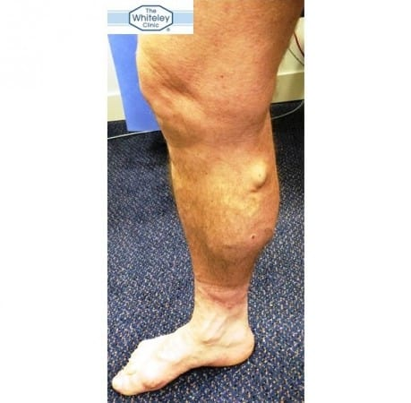 Varicose Veins - Simple Test by The Whiteley Clinic