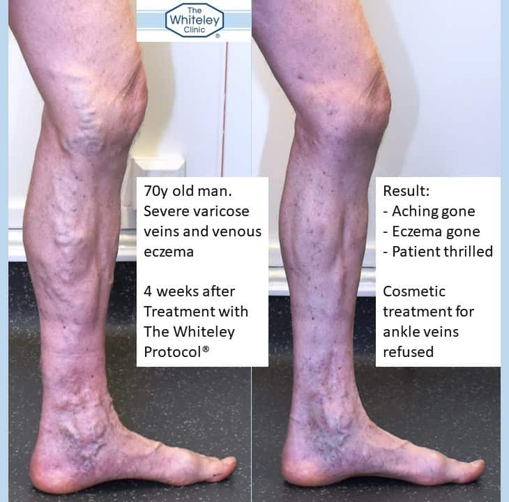 Varicose eczema and varicose veins cured by Whiteley Protocol - Before and after varicose vein surgery 4 weeks later