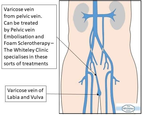 Varicose vein of vulva and labia misdiagnosed as cancer of vulva