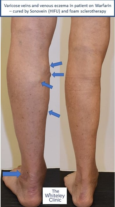 Varicose veins and venous eczema in anticoagulated patient on Warfarin – Sonovein (HIFU) and foam sclerotherapy