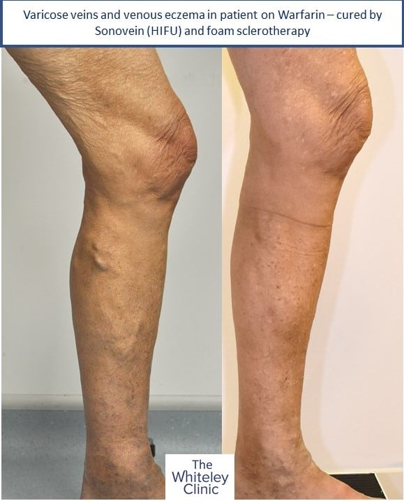 Varicose veins and venous eczema in patient on Warfarin – Sonovein (HIFU) and foam sclerotherapy