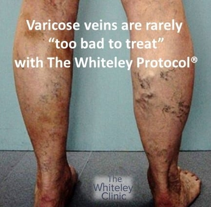 Varicose veins are rarely too bad to treat with The Whiteley Protocol