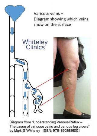 Varicose veins - diagram showing which bulging veins are visible on surface on standing in patient with varicose veins - The Whiteley Clinic