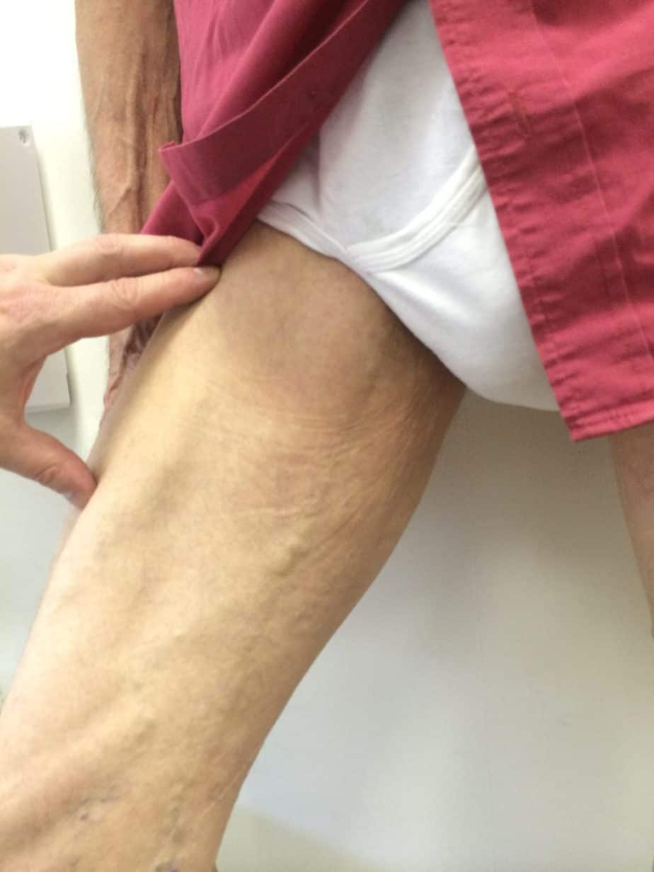 Varicose veins in men can be pelvic
