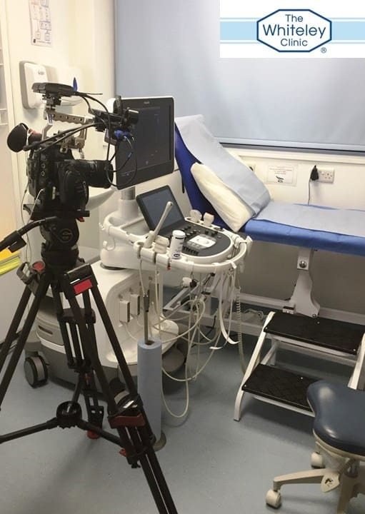 Varicose veins on TV - Filming duplex scan for varicose veins at The Whiteley Clinic London - 16 Jan 2017