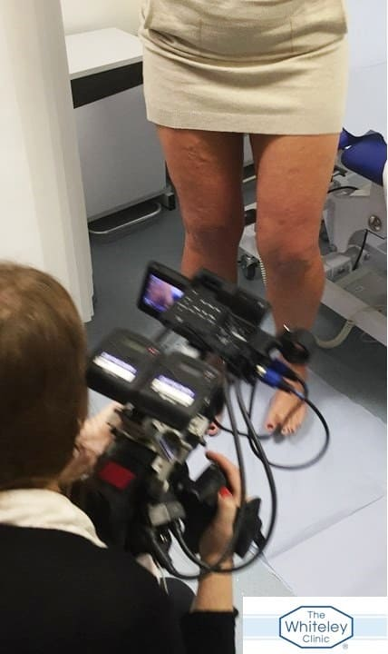 Varicose veins on TV - Filming varicose veins consultation at The Whiteley Clinic London - 16 Jan 2017