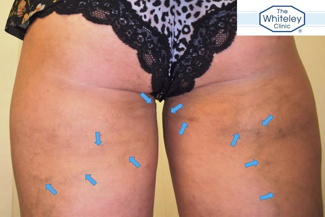 Varicose veins on backs of thighs - classic of pelvic varicose veins causing leg veins - marked with arrows