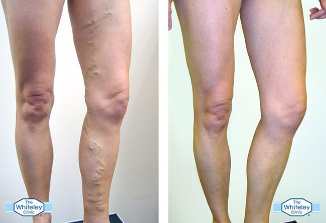 Before and after photos of a varicose veins patient treated at The Whiteley Clinic by Mr Barrie Price