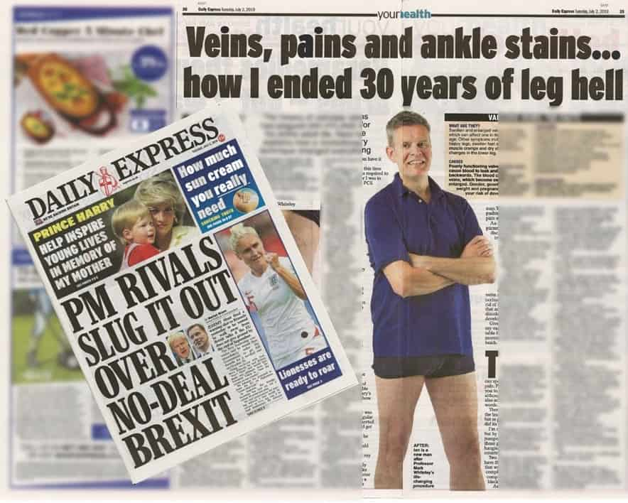 Ian Hyland's veins, pains and ankle stains