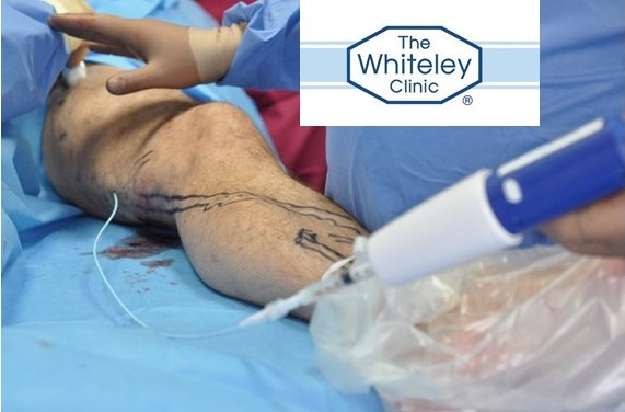 Venaseal Glue Treatment of Varicose Veins at The Whiteley Clinic
