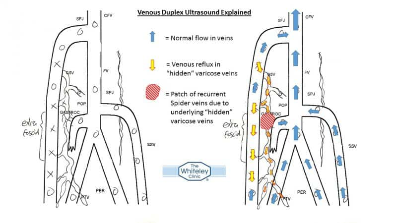 Venous Duplex Ultrasound showing varicose veins underlying - spider veins thread veins - The Whiteley Clinic
