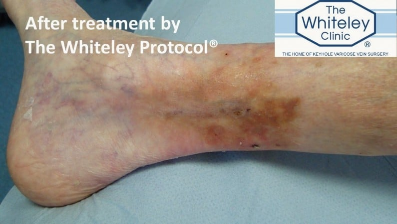 Venous leg ulcer cured after treatment