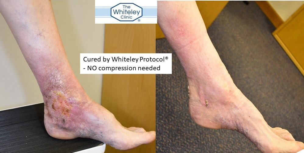 Venous Leg Ulcer cured by Whiteley Protocol - no compression needed - The Whiteley Clinic