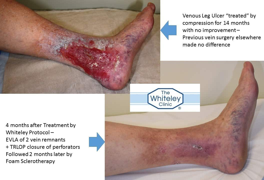 Venous Leg Ulcer cure in time for Christmas - after 14 months of compression bandaging with no effect, The Whiteley Protocol cured the ulcer in 4 months