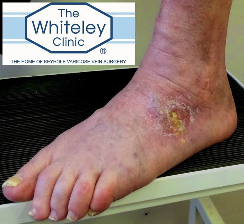Venous foot ulcer cured