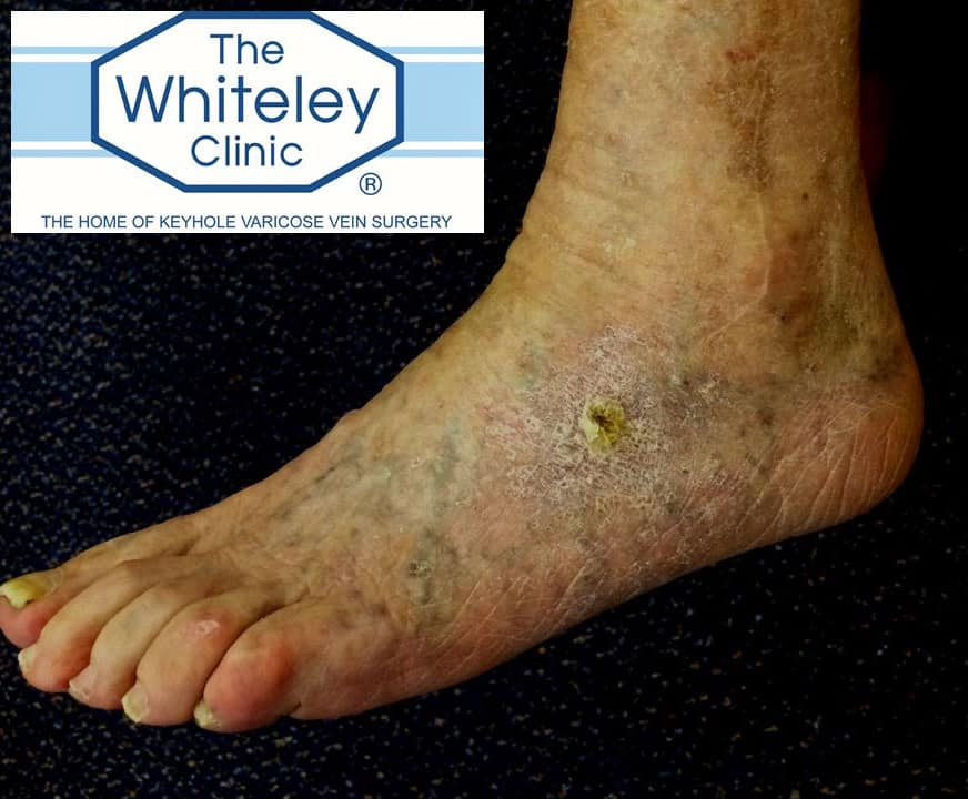 Venous foot ulcer - 4 weeks after treatment