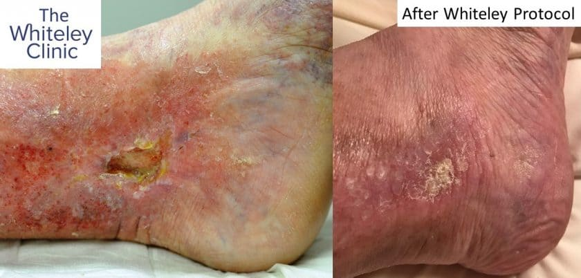 Venous leg ulcer before and after treatment by The Whiteley Protocol - My personal story by Jacqueline Wisby