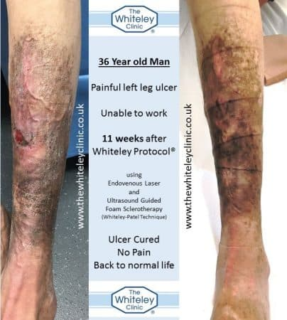 Venous leg ulcer in 36 year old man cured by Whiteley Protocol in 11 weeks