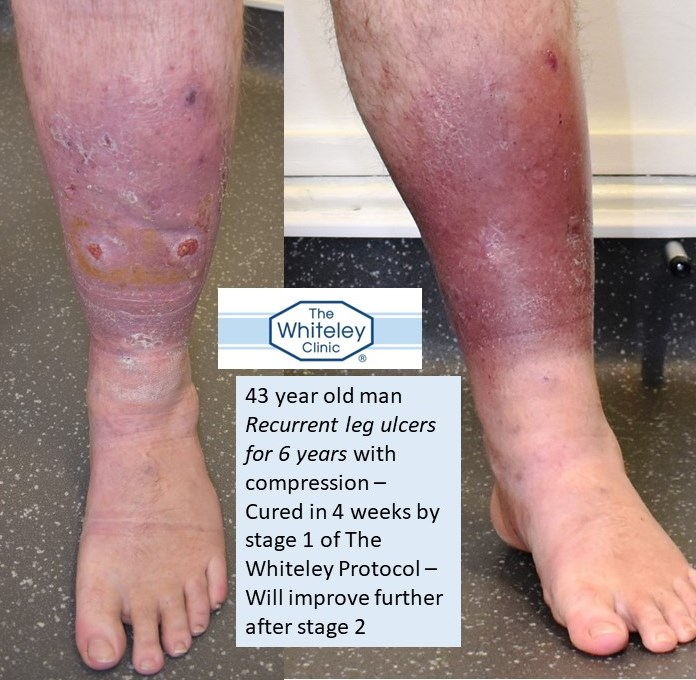 Venous leg ulcer in 43y man recurrent after compression only - cured in 4 weeks after Stage 1 of Whiteley Protocol
