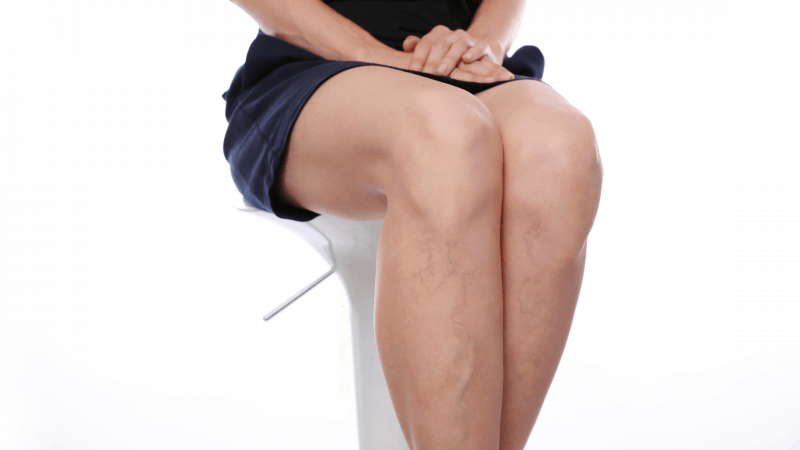 What is the cause of your varicose veins