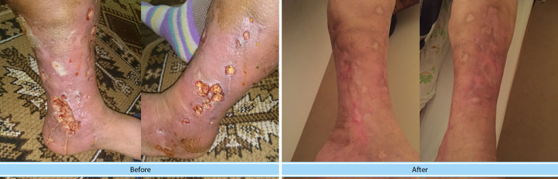 Before and after patient leg ulcer