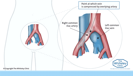 Diagram of classic May Thurner Syndrome - Left common iliac vein compressed by the right common iliac artery