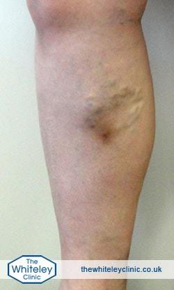 Phlebitis in a lower leg