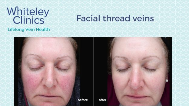 Before and after photos showing successful treatment of cheek thread veins