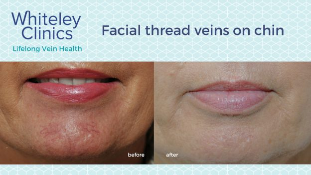 Before and after photos showing successful chin thread veins treatment