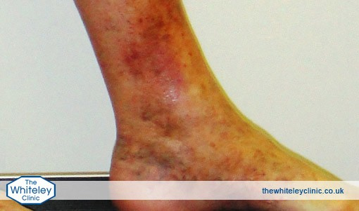 An ankle displaying haemosiderin