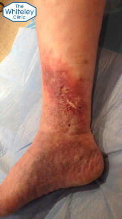 Healing venous leg ulcer after endovenous surgery under local anaesthetic at Whiteley Clinics