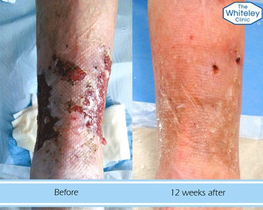 Leg ulcer before and after treatment