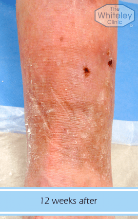 Permanent cure for leg ulcers after venous surgery at The Whiteley Clinic