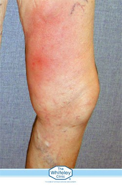 Phlebitis shown in a leg