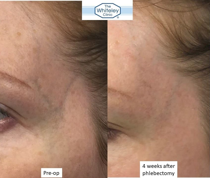 removal of veins on temple - remove facial veins - whiteley clinic dec 2017