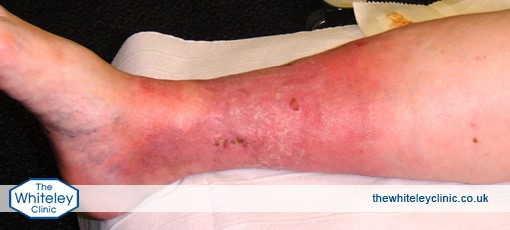 Severe inflammation caused by phlebitis