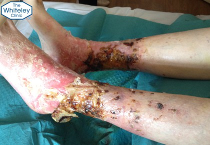 Severe venous leg ulcers drying out during elevation