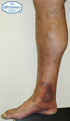 Skin damage due to varicose veins - almost a venous ulcer - CEAP-C4