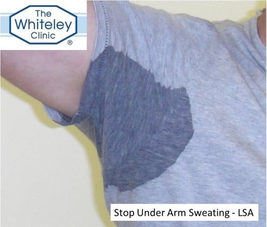 stop under arm sweating with Laser Sweat Ablation LSA using Whiteley LSA Cannula at The Whiteley Clinic