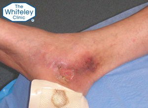 Venous leg ulcer curable by endovenous surgery using The Whiteley Protocol