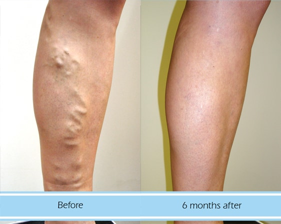 Results for varicose vein treatment