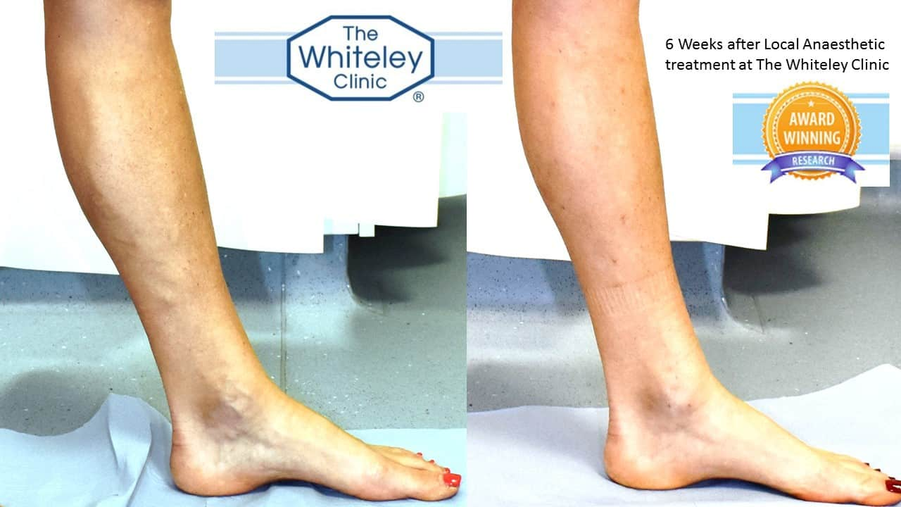 varicose veins before and after endovenous laser Whiteley Protocol