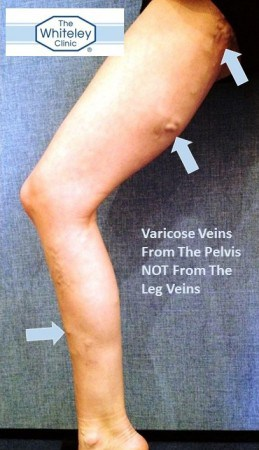 Varicose veins from the pelvis - The Whiteley Clinic is a world leading clinic in treating pelvic varicose veins