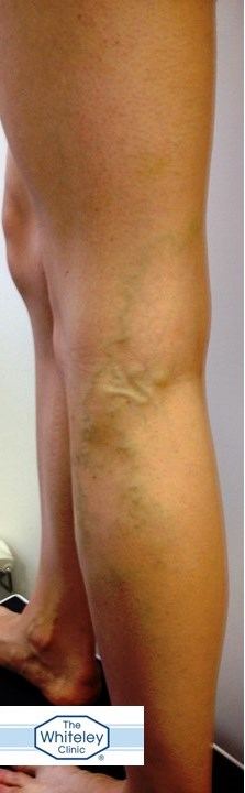 varicose veins increases risk of DVT by 5 times