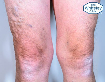 Varicose veins of the legs