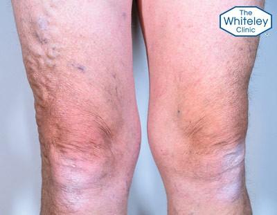 Varicose veins of the legs